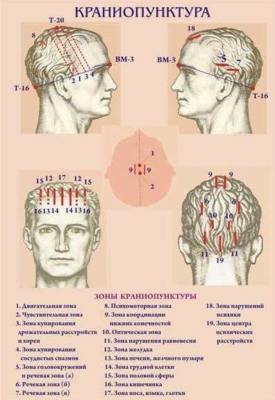 краниосакральная терапия 2