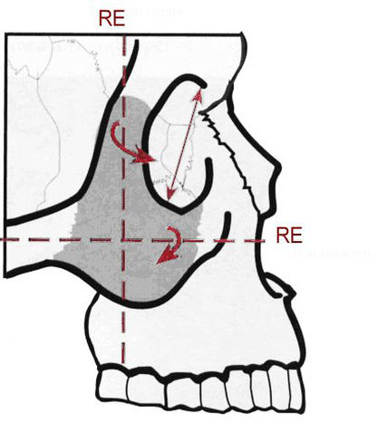 скуловая кость