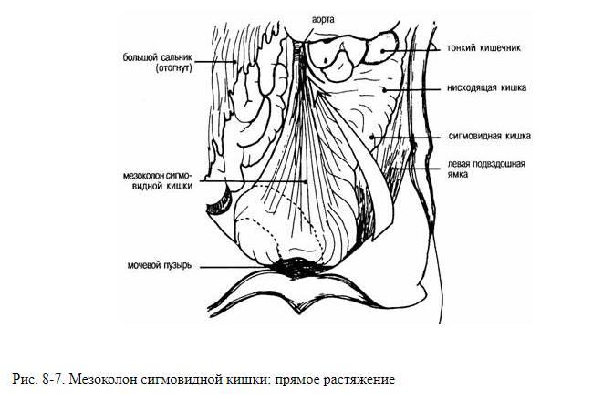 vезоколон сигмовидной кишки