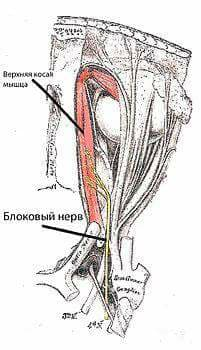 Блоковый нерв