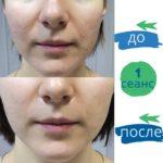 остеопатия в косметологии -1
