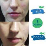 остеопатия в косметологии -2