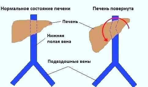 Варикозное расширение вен и остеопатия
