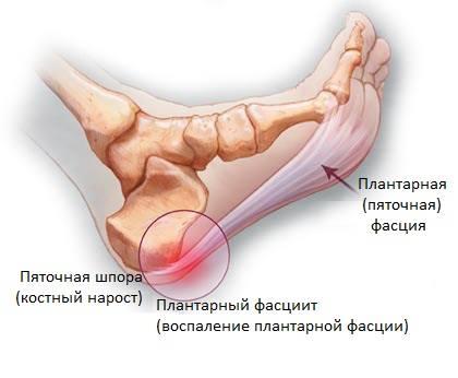 Лечение плантарного фасциита (пяточной шпоры)